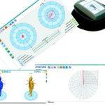 Posturograf ePosturo posturografia statyczna i dynamiczna
